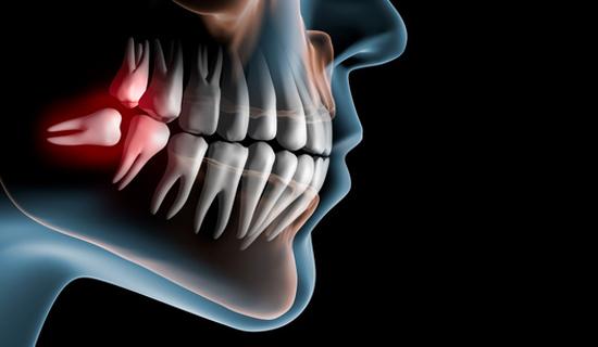 cirugía-oral