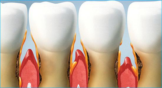tratamientos-de-periodoncia
