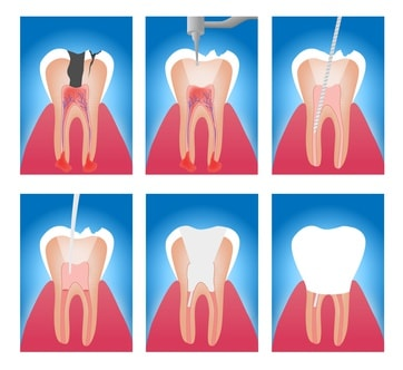 endodoncia-consulta-dental-alicante